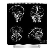 Normal Intracranial Venous System, 3d Ct Shower Curtain