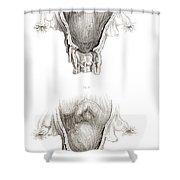 Placenta Previa, Illustration Shower Curtain
