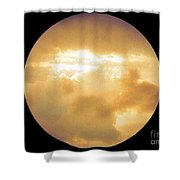 Pretty Storm Clouds With Sun Shine Shower Curtain