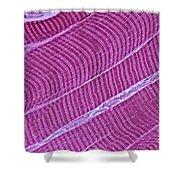 Primate Skeletal Muscle Shower Curtain