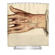 Psoriasis Guttata, Illustration, 1887 Shower Curtain