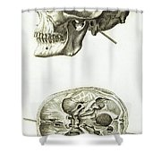 Skull With Head Wound, Illustration Shower Curtain
