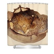 Spontaneous Digestion, Stomach, 1848 Shower Curtain