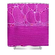 Striated Muscle Shower Curtain