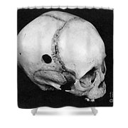 Trepanning: Skull Shower Curtain