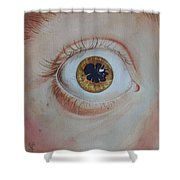 What's The Matter With Uveitis? Shower Curtain