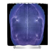 X-ray Of A Turtle Shell Shower Curtain