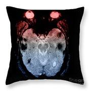 Mri Of Amyloid Angiopathy Throw Pillow