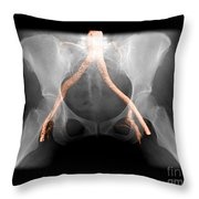 X-ray Of Pelvis With Arteries Throw Pillow