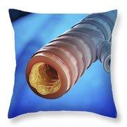 Bronchitis Throw Pillow
