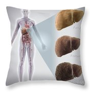 Stages Of Liver Disease Throw Pillow