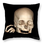 3d Ct Reconstruction Of Head And Hand Throw Pillow