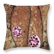 Chlamydia Infection Tem Throw Pillow
