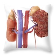 Polycystic Kidney Throw Pillow