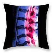 Severe Facet Joint Degeneration Throw Pillow