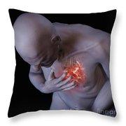 Heart Attack Throw Pillow
