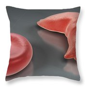 Sickle-cell Disease Throw Pillow