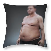 Obesity Throw Pillow