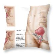 Anatomy Of Bladder Suspension Procedure Throw Pillow