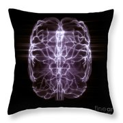 Blood Supply To The Brain Throw Pillow