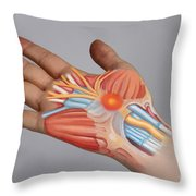 Carpal Tunnel Syndrome Throw Pillow