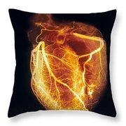 Colored Arteriogram Of Arteries Of Healthy Heart Throw Pillow