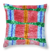 Contracted Skeletal Muscle Tem Throw Pillow