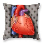 Coronary Vein Graft Throw Pillow