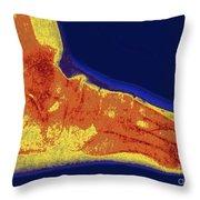 Flat Foot X-ray Throw Pillow