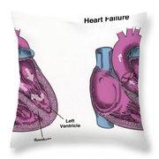 Healthy Heart Vs. Heart Failure Throw Pillow
