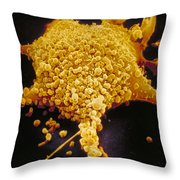 Human Cell Infected With Mycoplasma Throw Pillow by David M. Phillips