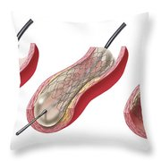 Insertion Of Stent Into Atherosclerotic Throw Pillow