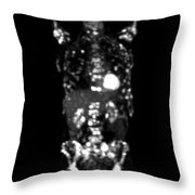 Metastatic Disease Pet Scan Throw Pillow
