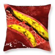 Microscopic View Of Fat Plaque Throw Pillow