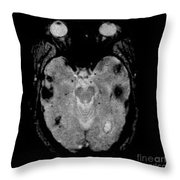 Mri Of Amyloid Angiopathy Throw Pillow