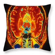 Mri Of Brain Throw Pillow