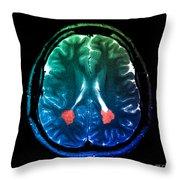 Mri Of Heterotopic Gray Matter Throw Pillow