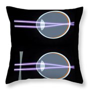 Myopia Or Short Sightedness Poster Throw Pillow