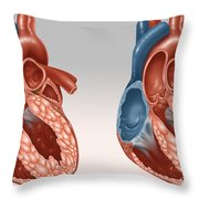 Normal And Diseased Hearts Throw Pillow