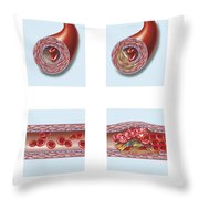 Normal Artery Compared To Plaque Throw Pillow