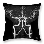 Normal Intracranial Mra Throw Pillow