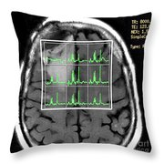 Post Operative Mr Spectroscopy For Gbm Throw Pillow