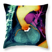 Prosthetic Heart Valve 3d Ct Scan Throw Pillow