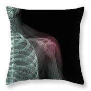 Shoulder Injury Throw Pillow