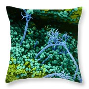 Surface Of Leaf With Fungal Infections Throw Pillow