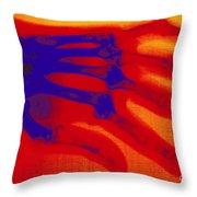 X-ray Of Hand With Rheumatoid Arthritis Throw Pillow