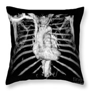 3d Ct Reconstruction Of Heart Throw Pillow by Medical Body Scans
