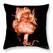 3d Cta Of Heart Throw Pillow by Medical Body Scans