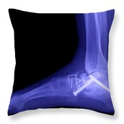 Ankle Fracture Throw Pillow