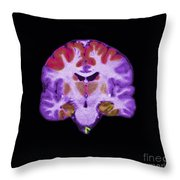 Brain Areas Affected By Alzheimers Throw Pillow